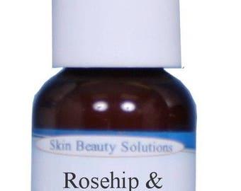 Rosehip & Hibiscus Facial Serum with Vitamins A B C E-Skin Lightening Wrinkles Acne