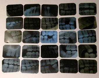25 Dental X-Rays Tooth Xrays 4cm x 3cm (1 5/8 x 1 3/8)