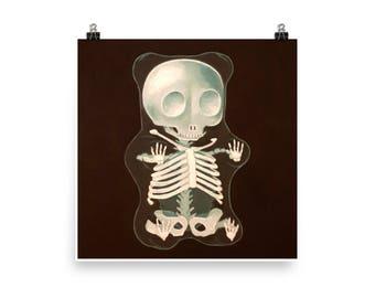 X-Ray Gummy - Art Print from original painting, realism, skeleton, dark, humor, funny, kitsch, Halloween, death, playful, goth, bones, black
