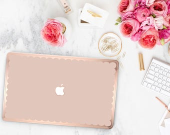 French Rose and Scallop Rose Gold Edge Hybrid Hard Case for Apple Mac Air & Mac Retina , New Macbook 2016 - Platinum Edition