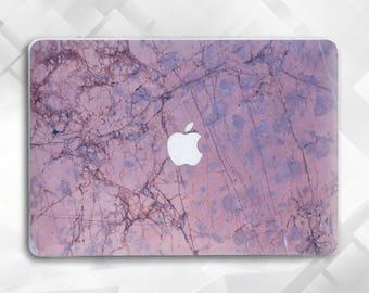 Rose Marble Macbook Stone case Pro Case Macbook Hard Case, Macbook Air case Macbook Air 11 case Macbook Air 13 Macbook Pro 15 Macbook 12