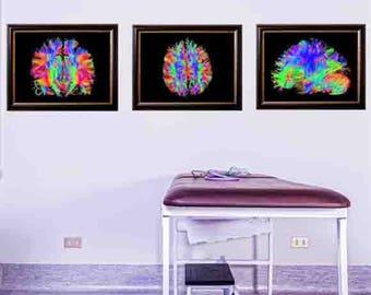 brain art, brain wall art, human brain, human brain art, Human body, medical gift, brain print, medical decor,