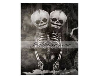 Two Headed Conjoined Skeleton 8x10 Photography Print, Black and White Skull Art, Halloween Decor Macabre Oddity