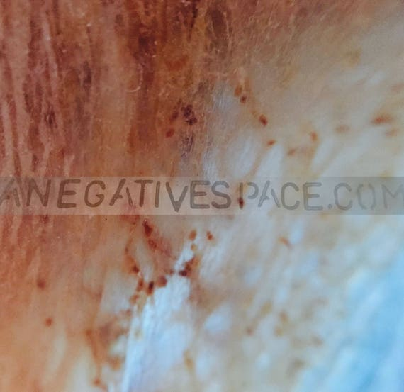 "SKIN VISION--- original, one of a kind photo transferred to metal 12""x12"" no duplicates ever made"