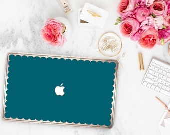 Gypsy Teal and Scallop Rose Gold Edge Hybrid Hard Case for Apple Mac Air & Mac Retina , New Macbook 2016 - Platinum Edition