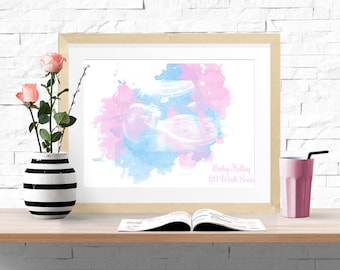 Personalised Watercolour Scan Print with your Scan/ Ultrasound Picture Digital File, Print only or Fully Framed. New Baby, Pregnancy Gift