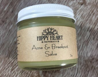 Acne and breakout Salve / acne treatment / rosacea / vegan / dark marks/ fade acne scars