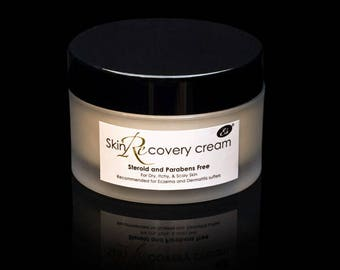 Skin Recovery Cream for Ezcema and Dermatitus sufferers