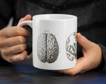 Brain Anatomy Mega Mug | Nurse Gift, Neuroscience, Jumbo Coffee Mug, Anatomical, Nursing Science Biology Greys Anatomy Neuron teacher gift