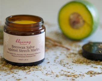Stretch Mark Salve, Beeswax Salve for Stretch Marks, Organic Stretch Mark Balm, Stretch Mark Relief, Cellulite Treatment, Cellulite Balm