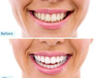 Teeth Whitening Gel Led LIGHT-ACTIVATED KIT 35%