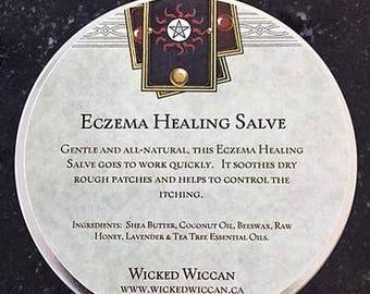 Eczema Healing Salve