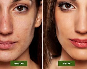 Acne Cleanser - 100% Vegan - Problem prone cleanser -  Oily/Acne Cleanser - Facial Cleanser