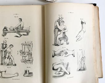 Antique rare illustrated German medical book 1800s  anatomy collectible lithograph illustrations weird art prints