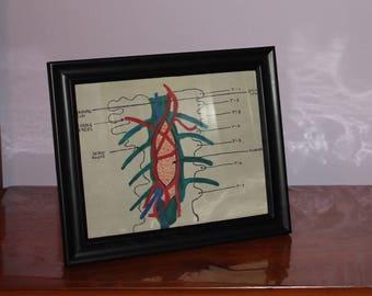 Grey's Anatomy Tumor Print