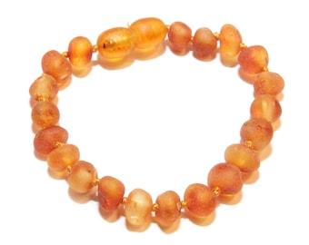 Genuine RAW Baltic Amber Baby Teething Bracelet Anklet Dark Honey. Authentic 14 - 15 cm/5.5 -  5.9 in RA2