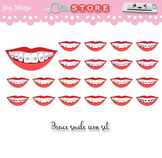 Dental Zahnspange Clipart Symbole. Des Mädchens Lippen mit