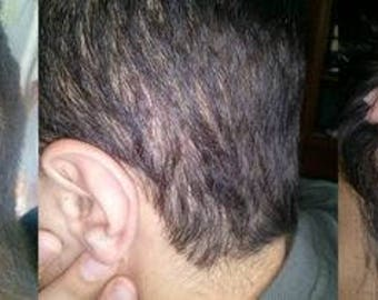 Shampoo And Scalp Treatment For Seborrheic Dermatitis, Scalp Eczema, Psoriasis, And Dandruff