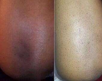 Kojic Acid & ULTRA Skin Lightening Bleaching Cream Rapid Action