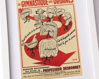 Old French medical print - Crazy, quirky and unique wall art with a lovely vintage look.