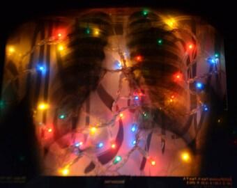 lamp x-ray d a ribcage