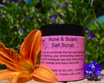 Acne & Scars Salt Scrub-Raw, Organic, Vegan, For Face or Body, high in vitamins, minerals and antioxidants.