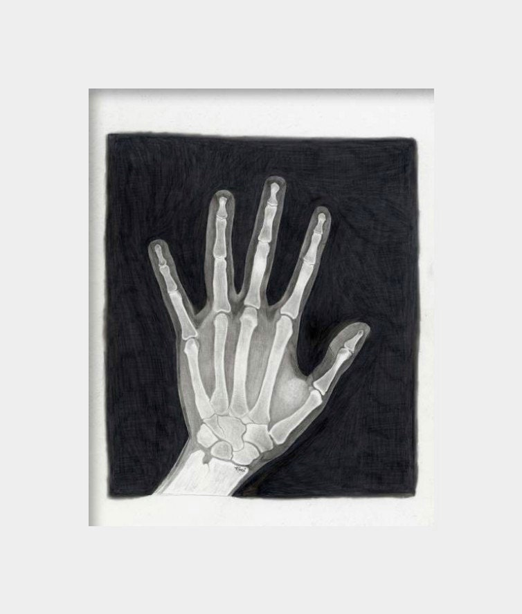 8 5 X 11 Hand X Ray Art Print From Original By