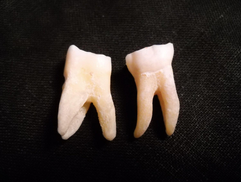 Real human teeth - photo#13